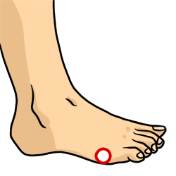 Acupressure Point - Bladder 65