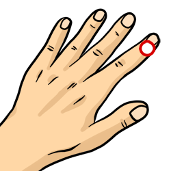Acupressure Points Guide: 38 Points for 175 Injuries