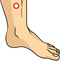Acupressure Point - Spleen 6